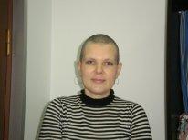 volosy-ximioterapia (1)