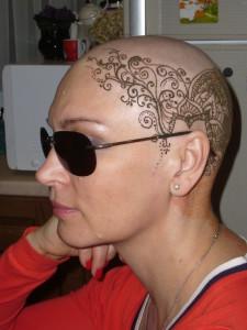 himioterapija-posledstvija