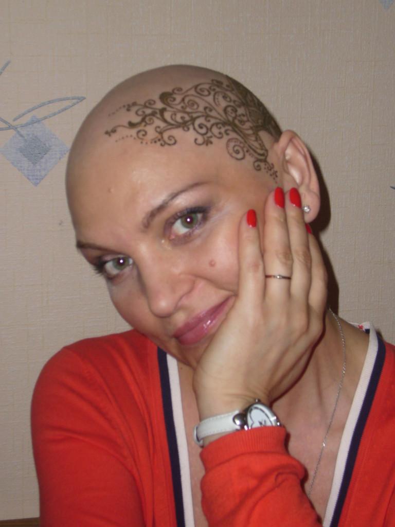 Когда выпадают волосы после химиотерапии
