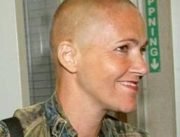 Мари Фредрикссон после химиотерапии